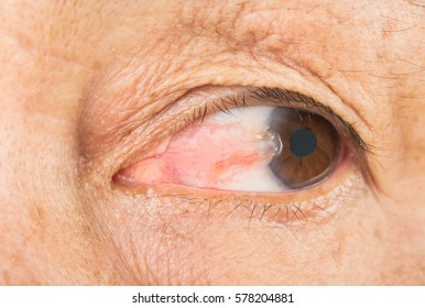 Eye pterygium in old women