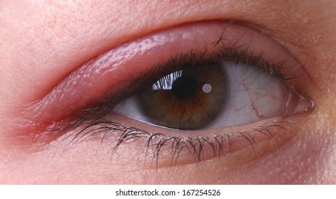 Eye sty. Closed woman's eye with sty.