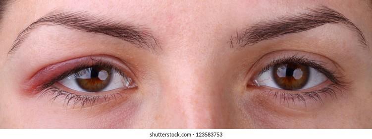 Eye sty. Opened woman's eye with sty and health eye.