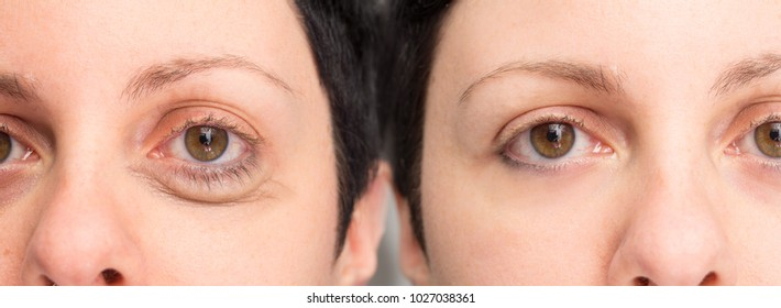 Eye of woman before and after cosmetic treatment for wrinkles re