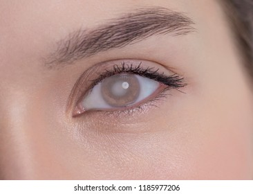 Eye of a woman with cataract and corneal opacity