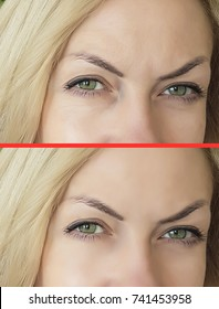 eye wrinkles before and after, biorevitalization, botox, pigment spots, freckles, old age, eyes