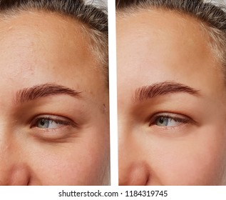 eye wrinkles young woman before and after cosmetic procedures