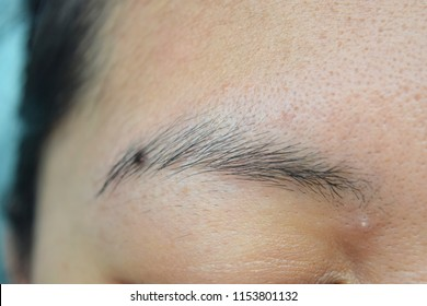 Eyebrows and spots or spots on the face.