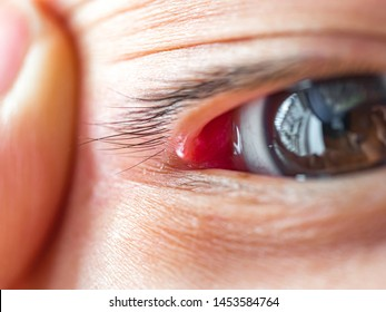 Eyelid bump, stye, pimple on eyes lid with white head, a localized infection in the eyelid that causes a tender, red bump near the edge of the lid.