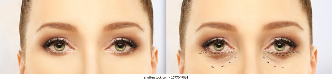 Eyelid Images, Stock Photos & Vectors | Shutterstock