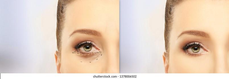 Eyelid surgery,blepharoplasty .