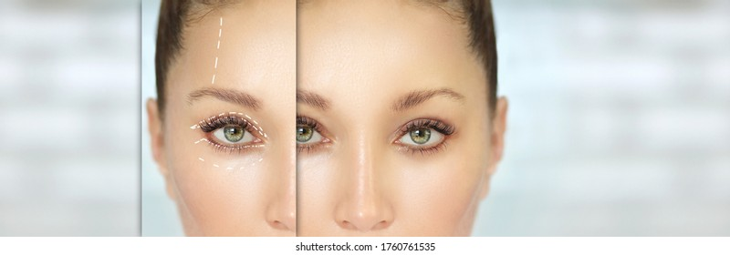Eyelid surgery/Blepharoplasty,plastic surgeon,before and after