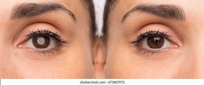 Eyes before and after cataract removal with and without problem