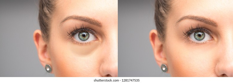 Eyes before and after elimination of swelling