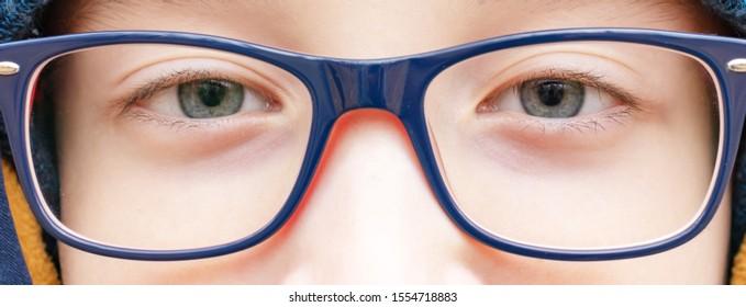eyes of an intelligent teenage boy wearing blue fashionable stylish glasses close up, outdoors.
