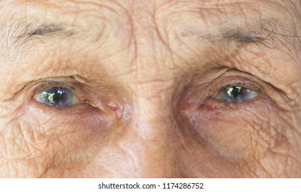 eyes of old man , minor cataract patient