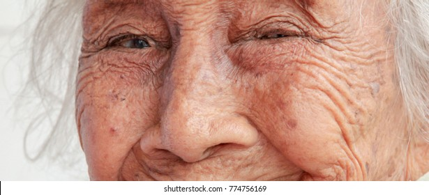 eyes of old woman , minor cataract patient