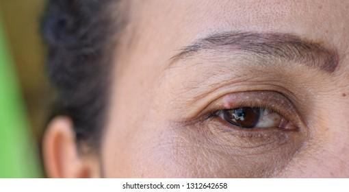 Eyes are stye on the eyelids.