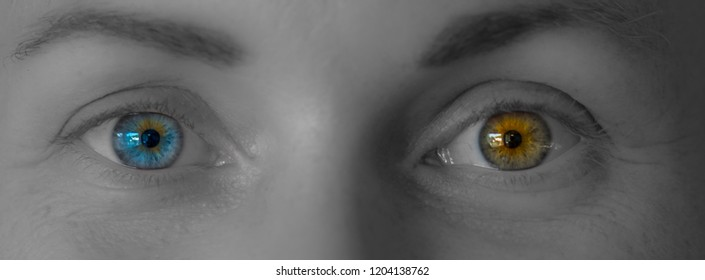 Eyes of a woman with one blue and one brown eye