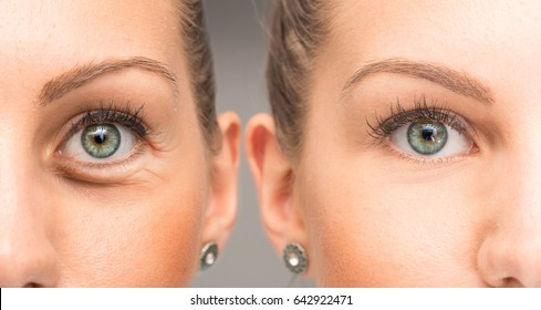 Eyes of woman with and without eye bag before and after cosmetic treatment