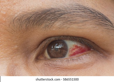 Eyes wounded by broken capillaries around the eye, which causes white blood red.