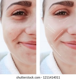 face beautiful girl wrinkles on the face before and after procedures