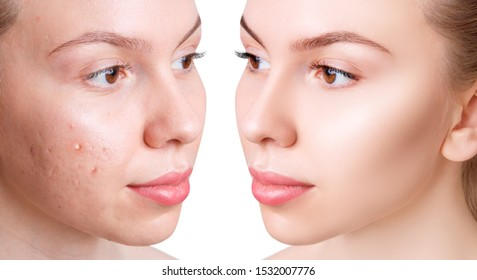 Face of beautiful woman before and after acne treatment. Beautician concept.
