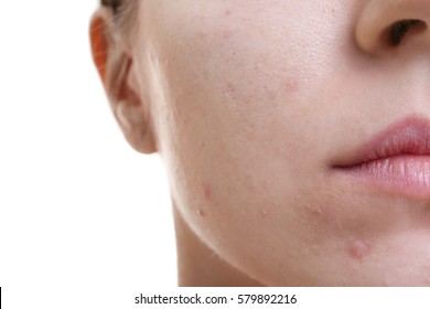 Face of beautiful young woman with problem skin, closeup