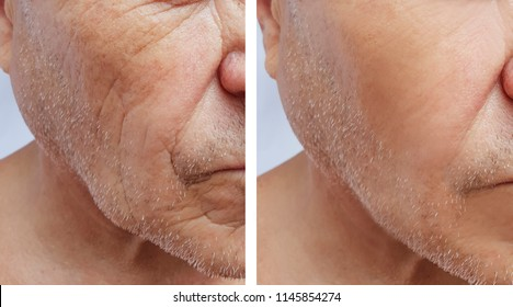 face of an elderly man wrinkles face before and after procedures