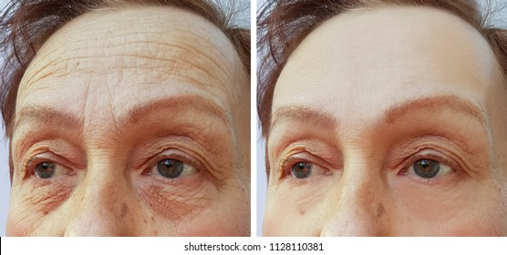 face elderly woman forehead wrinkles before and after cosmetic procedures