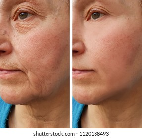 face of an elderly woman wrinkles   before and after