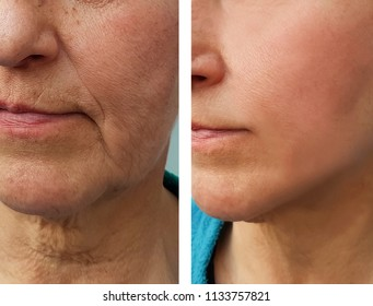 face of an elderly woman wrinkles before and after procedures