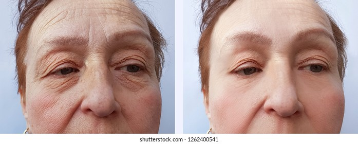 face elderly woman wrinkles before and after procedures