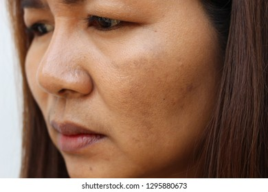 The face of the girl has freckles and large pores