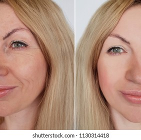 face girl wrinkles before and after  procedures
