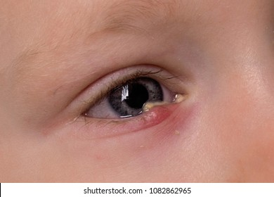 Face of little boy with red eyes inflammation (conjuctivitis) looking sadly. Sore Red Eye. Chalazion and Blepharitis. Child's eye suffers from ailment.