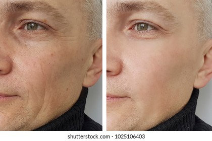 face of a man before and after the procedure