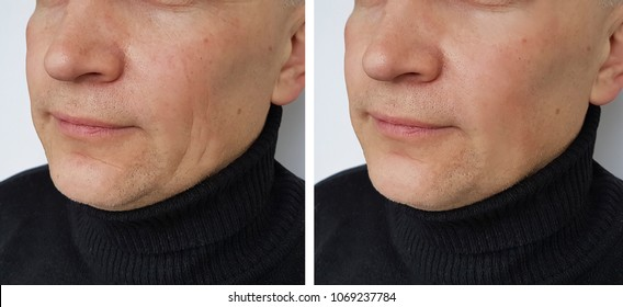 face man wrinkles before and after