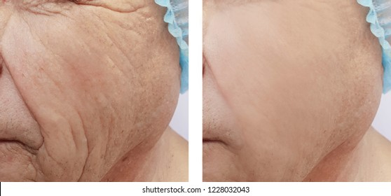 face of an old man wrinkles before and after the rejuvenation procedures
