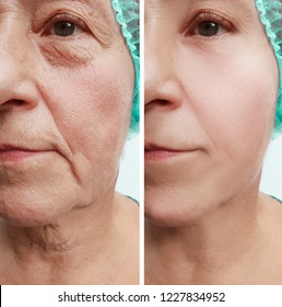 face of an old woman wrinkles before and after procedures