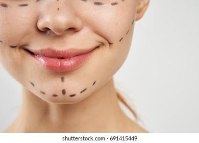 Face plastic