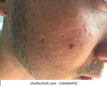 Hypertrophic Scar Images, Stock Photos & Vectors | Shutterstock