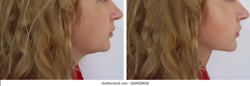 face woman before and after