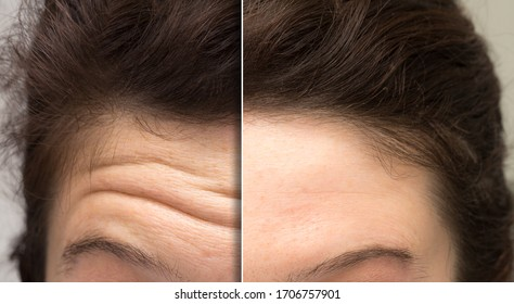 face of a woman before and after a cosmetic treatment to smooth expression lines. Concept of anti-aging and rejuvenation cosmetics on forehead wrinkles