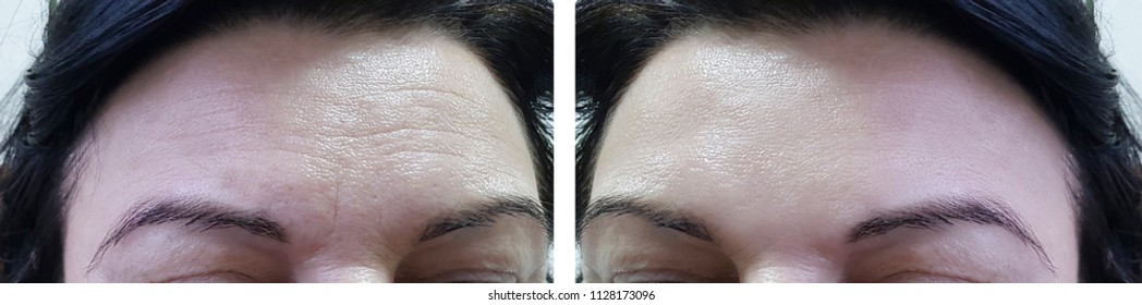 face woman forehead wrinkles before and after cosmetic procedures