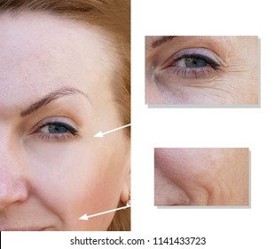 face woman wrinkles face before and after procedures