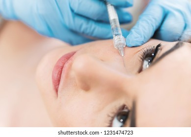 Face wreakles filling with hyaluronic acid fillers.