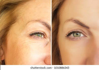 face wrinkles before and after cosmetic procedure