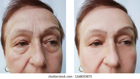 face wrinkles elderly woman before and after procedures