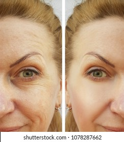 face wrinkles woman   before and after procedures