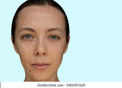 Face of a young girl after a cosmetic procedure of chemical peeling close-up. The concept before and after.