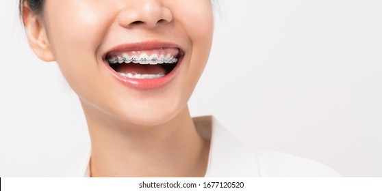 Face of a young smiling asian woman with braces on teeth, Orthodontic Treatment.