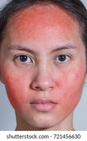 Face of a young woman with red rash. Skin irritation. Acne treatment concept, closeup.