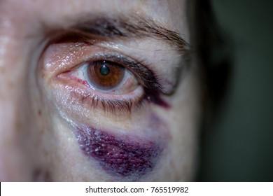 Facial Hematoma (bruise) surrounding Left Eye